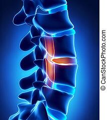 cuerda, presión, disco, herniated, espinal