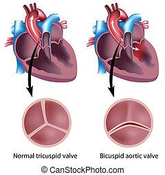 Defecto de válvula del corazón, eps8