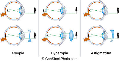 Defectos visuales