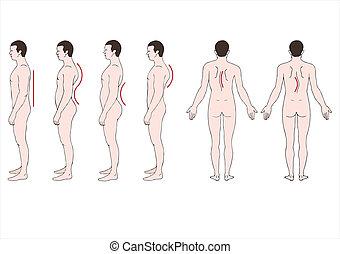 deformación, spine?