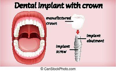 dental, corona, implante