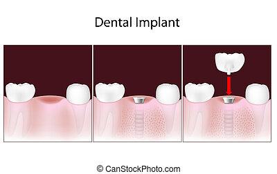 dental, procedimiento, eps10, implante
