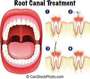 dental, vector, canal, raíz, tratamiento