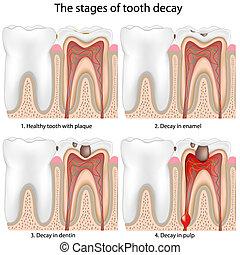 Descomposición de dientes