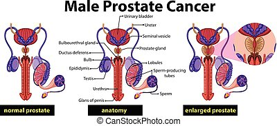 Diagrama de cáncer de próstata masculina
