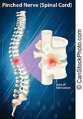 Diagrama de nervios pellizcados en la médula espinal