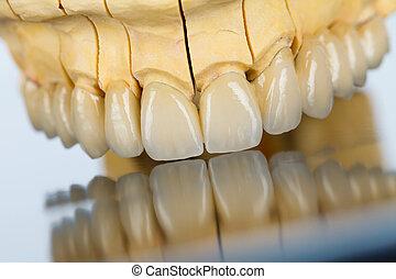 Dientes de cerámica, puente dental