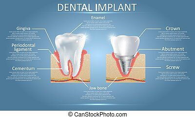Dientes humanos e implante dental, póster educativo vectorial