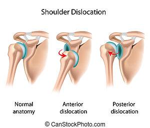 dislocado, eps8, hombro