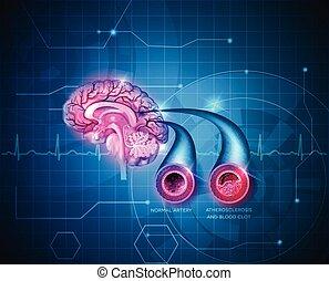 El cerebro humano sana la atención