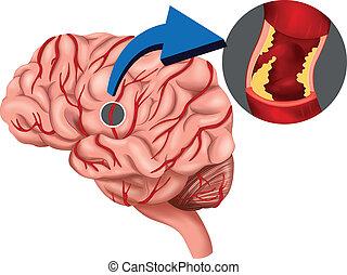 El concepto de Clot Blood en el cerebro