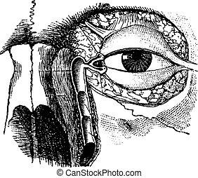 El conducto nasolacrymal, grabado añejo