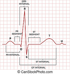 El corazón humano normal ritmo sinusal, electrocardiograma