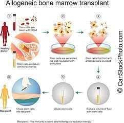 El proceso de trasplante alógeno.