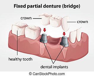 El puente parcial de dentadura fija