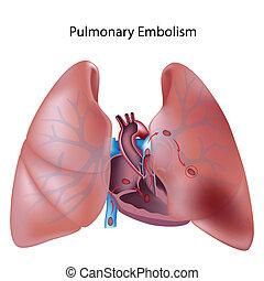 Embolia pulmonar, eps10