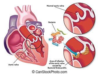 Endocarditis bacterial