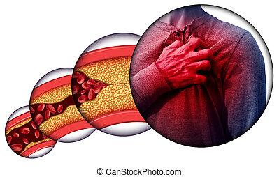 Enfermedad cardíaca humana