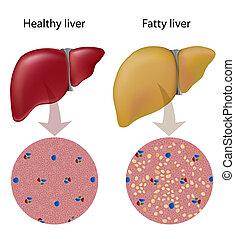 Enfermedad del hígado, eps10