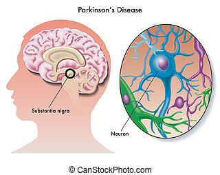enfermedad, parkinson's