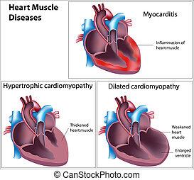 Enfermedades del músculo cardíaco, eps8