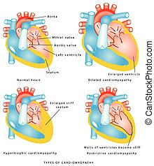 Enfermedades del músculo del corazón