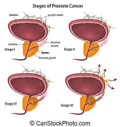 Escenas de cáncer de próstata, eps10