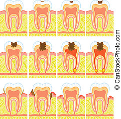 Estructura interna de dientes