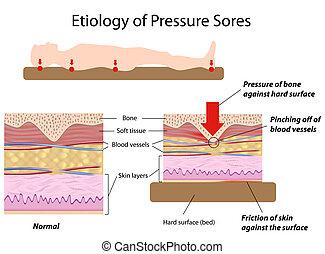 Etiología de las llagas de presión, eps8