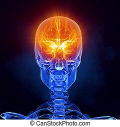 exploración, médico, cerebro, frente, radiografía, vista