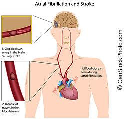 Fibrilación atrial y embolia,eps8