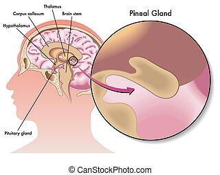 Glándula pineal