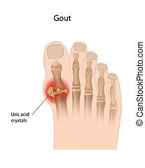 gout, dedo del pie, eps10, grande