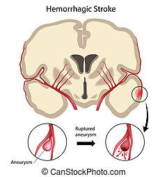 Hemorrágica cerebral, eps10