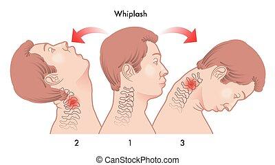 Herida de latigazo