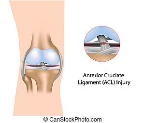 Herida de ligamento cruzado anterior