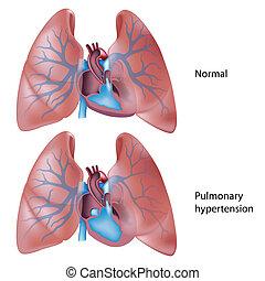 Hipertensión pulmonar, eps10