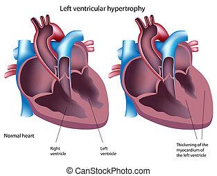 Hipertrofia ventricular izquierda, eps8
