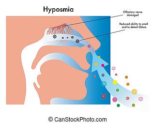 Hiposmia