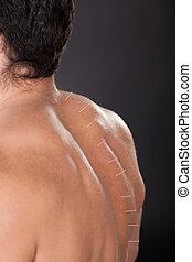 Hombre con agujas de acupuntura en la espalda