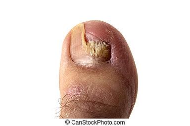 Hongos de uñas