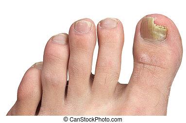 Hongos de uñas en la cima de la infección