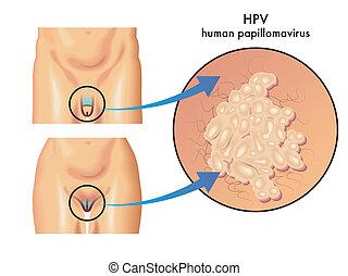 HPV (papelomavirus humano)