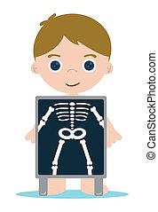 huesos, radiografía, niño