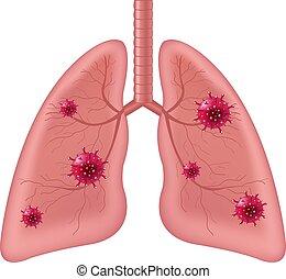 humano, aislado, coronavirus, órgano, plano de fondo, interno, pulmones, blanco