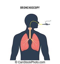 humano, examination., pulmón, enfisema, endoscopy, bronchoscopy, sistema, icono, respiratorio