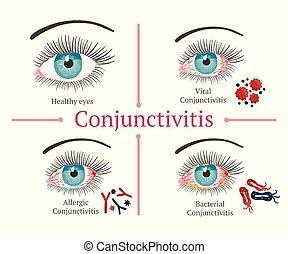 illustration., salud, ojo, disease., oftalmología