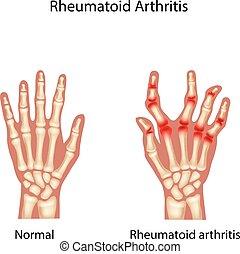 Ilustración de arte reumatoide
