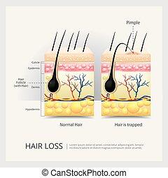 Ilustración de vectores de pérdida de pelo