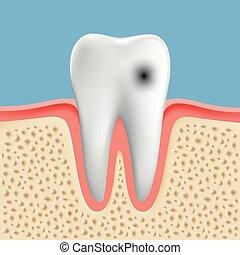 Imágenes de un diente humano con caries